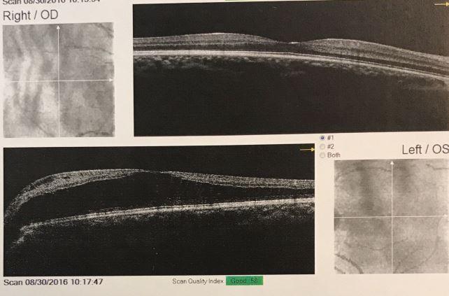 Macular edema (L)