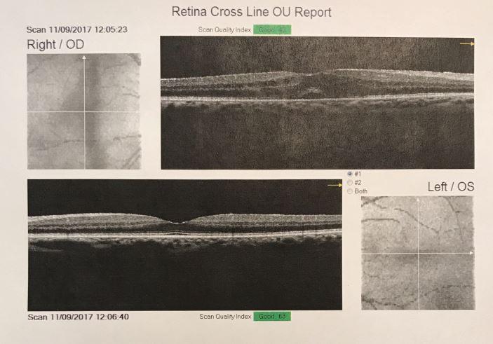 Macular edema (R)